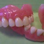 Quoi faire en cas d'urgence prothèse dentaire ?