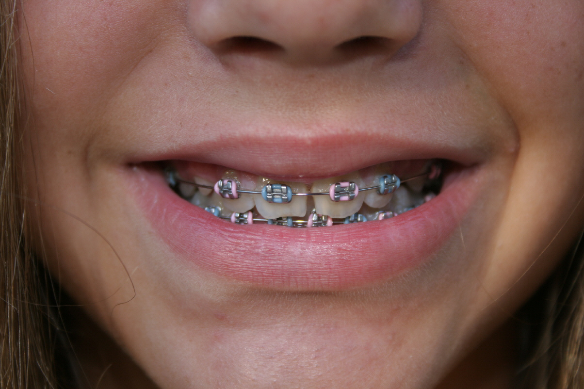Se faire poser un appareil dentaire prix discount for Appareil detartrage dentaire maison